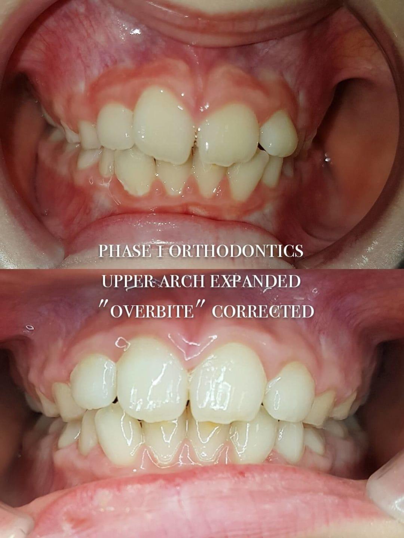Orthodontics 4