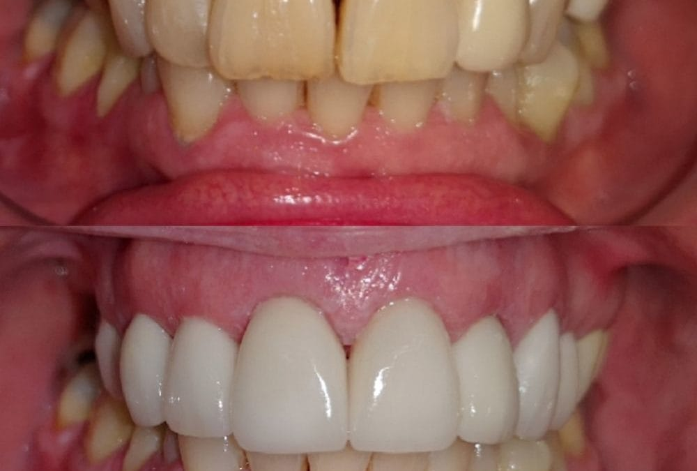 Cosmetic Dentistry 9