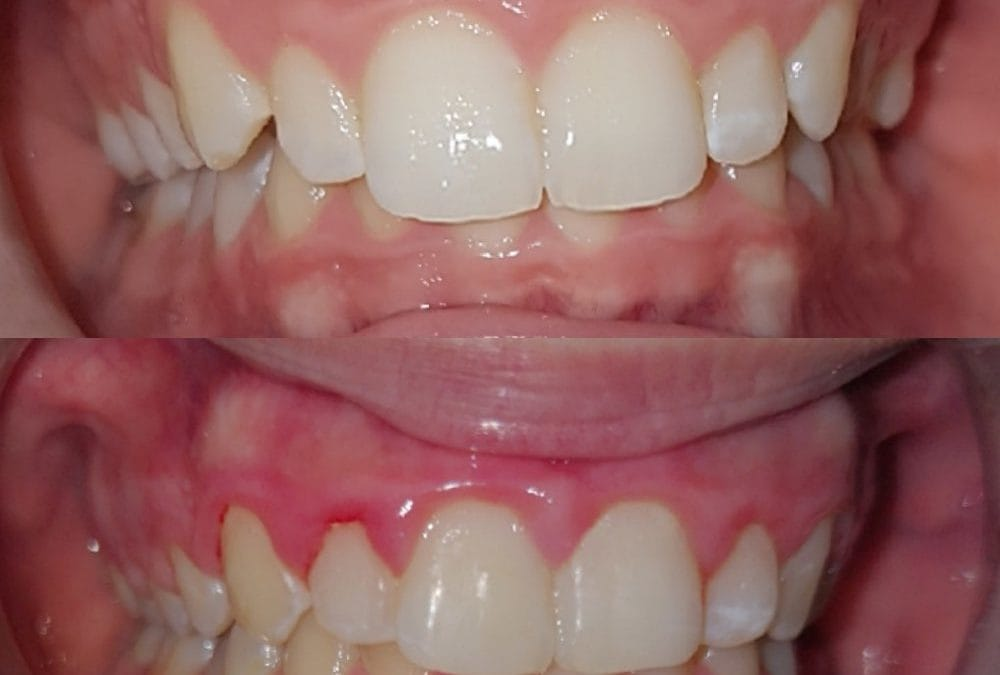 Cosmetic Dentistry 10