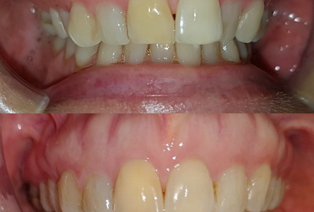 Cosmetic Dentistry 11