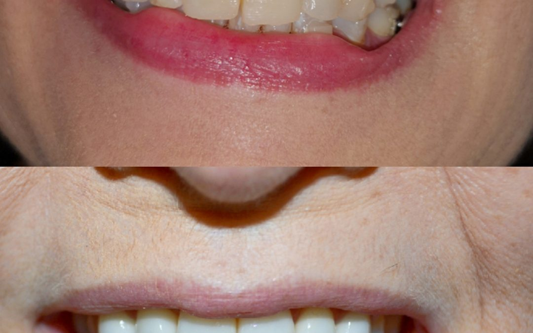 Cosmetic Dentistry 13