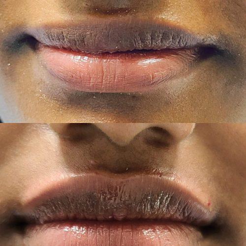 Lip augmentation Before After Lip Augmentation 17