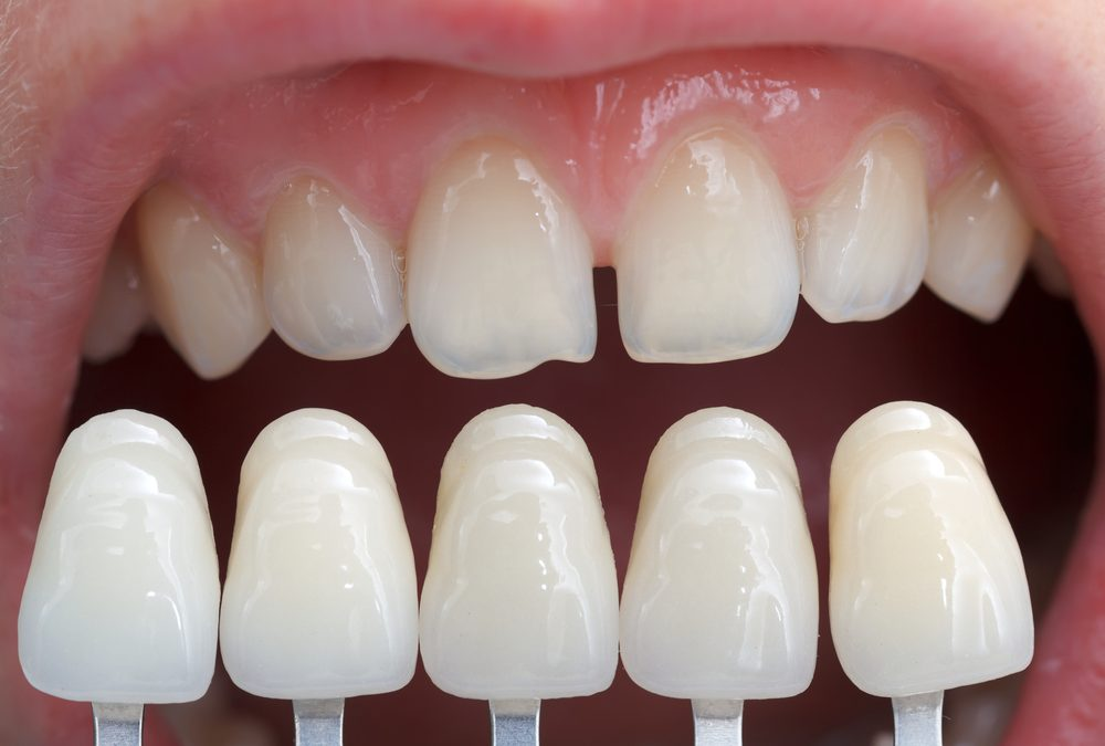 What Is The Cost Of Porcelain Veneers?