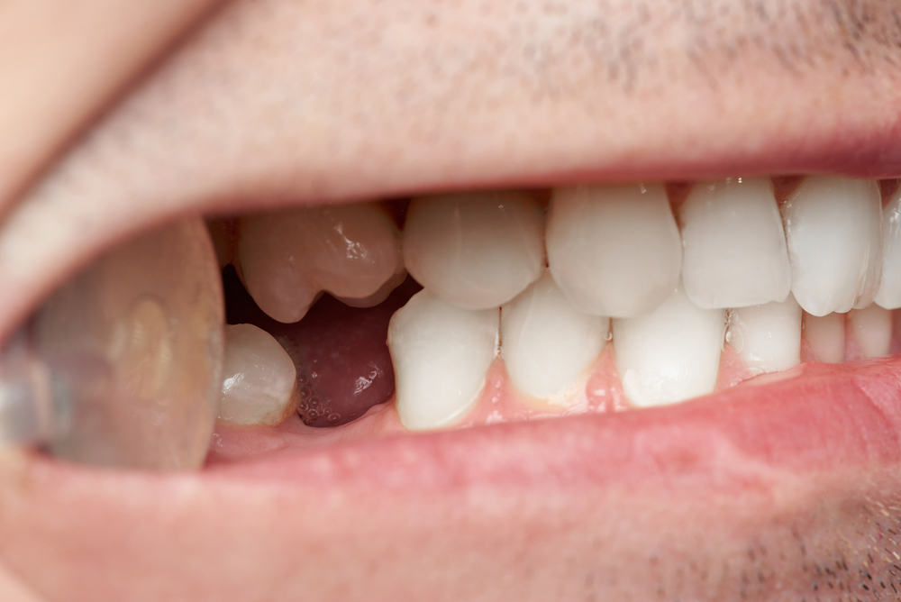 What Are The Consequences Of Missing Teeth?